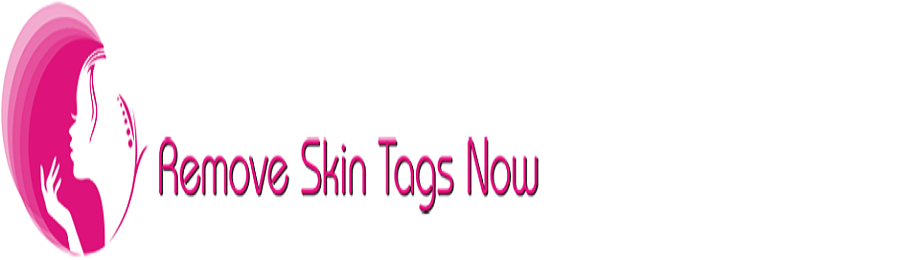 Remove Skin Tags Now!